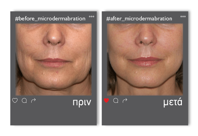 Microdermabration_enthesi_1